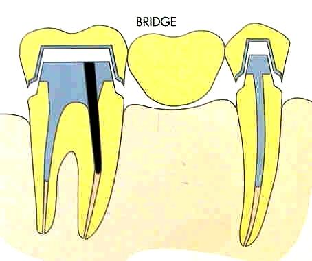 bridge_03bis.jpg