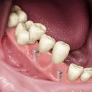 implants_dentaire_02.jpg