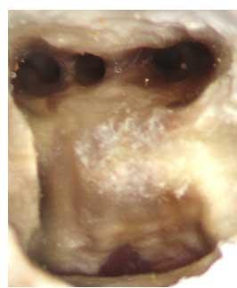 Le-microscope-opératoire-en-Endodontie-2.jpg