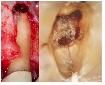 Le-microscope-opératoire-en-Endodontie-3.jpg