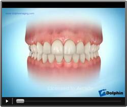 video-orthodontique.png