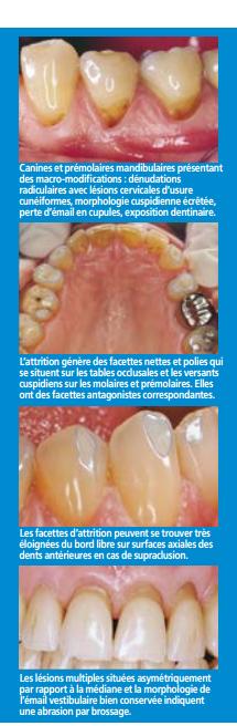 comprendre_l_usure_des_dents.PNG