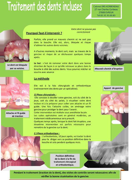 Traitement-des-dents-incluses.png