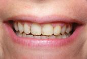 sourire-apres_h117.jpg