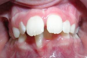 occlusion de face après traitement.jpg