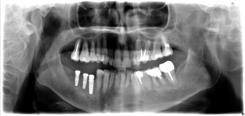 3 implant conique en bas à droite