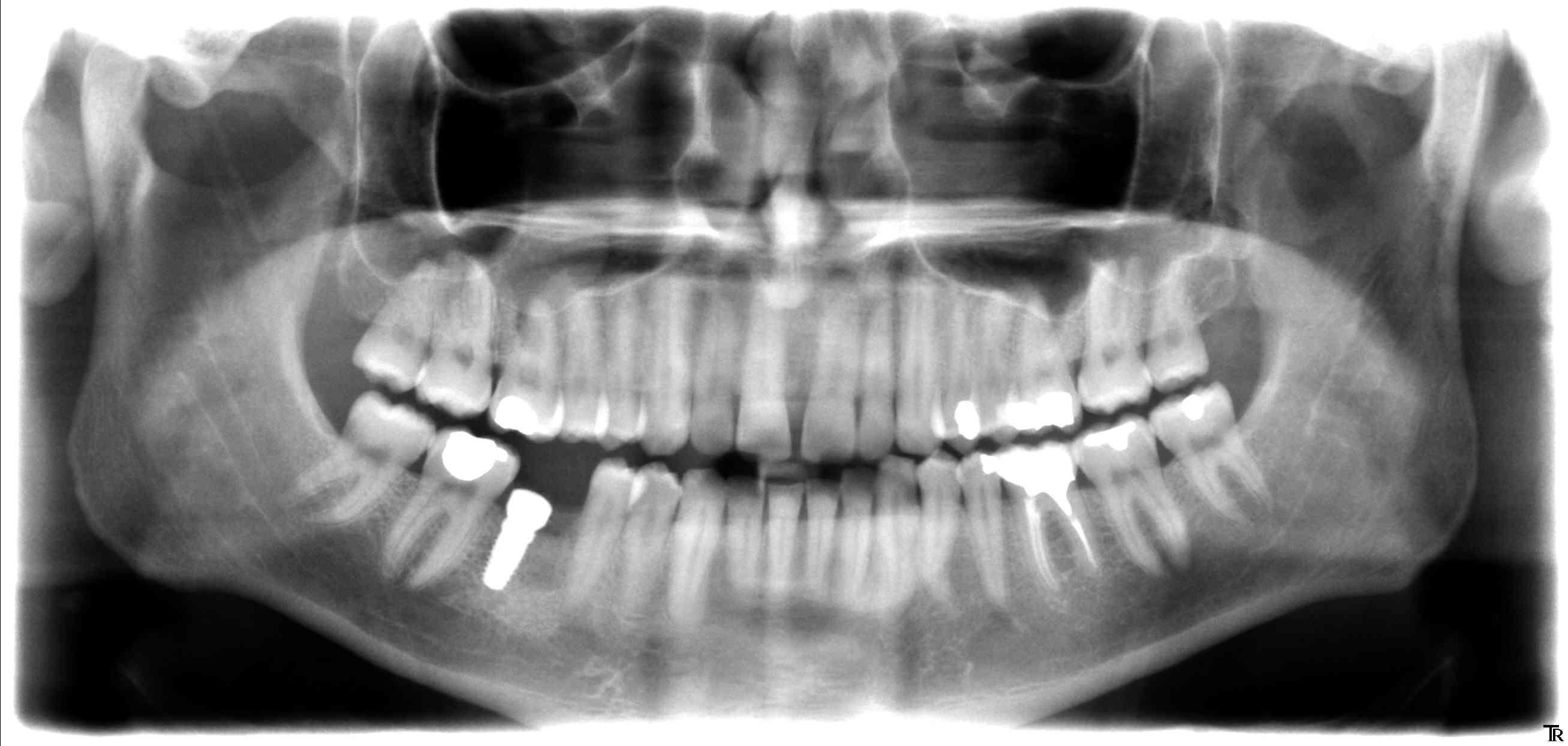 1ère molaire droite
