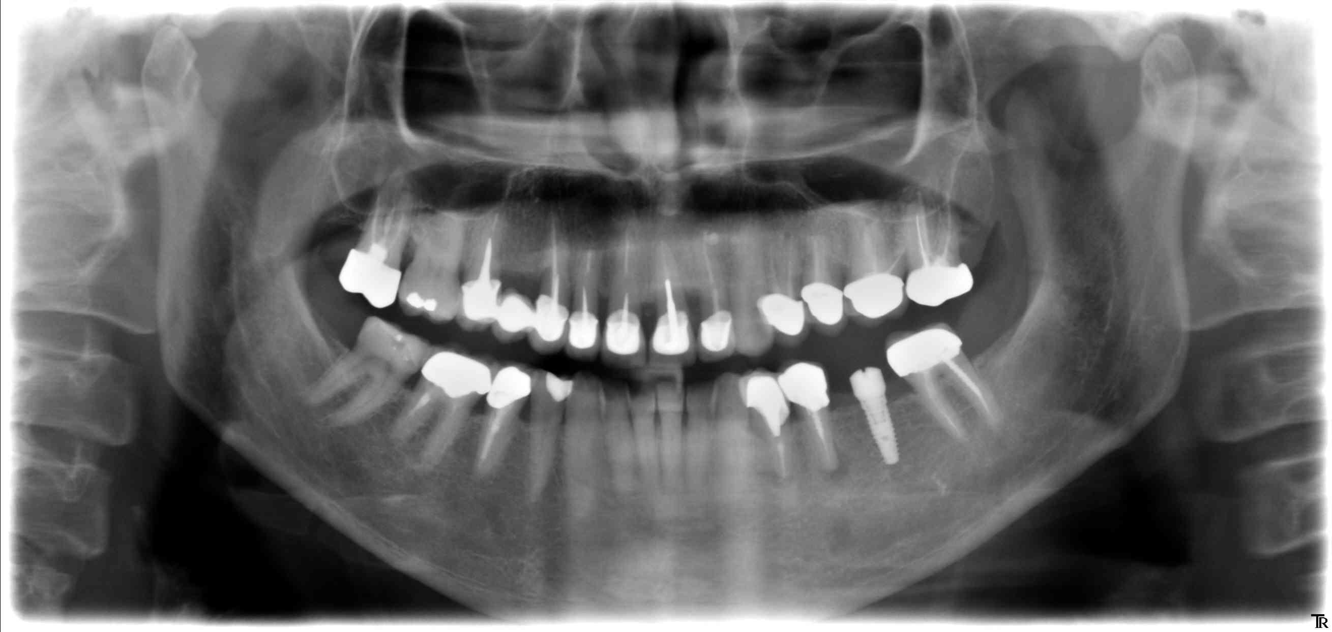 implant conique en bas à gauche