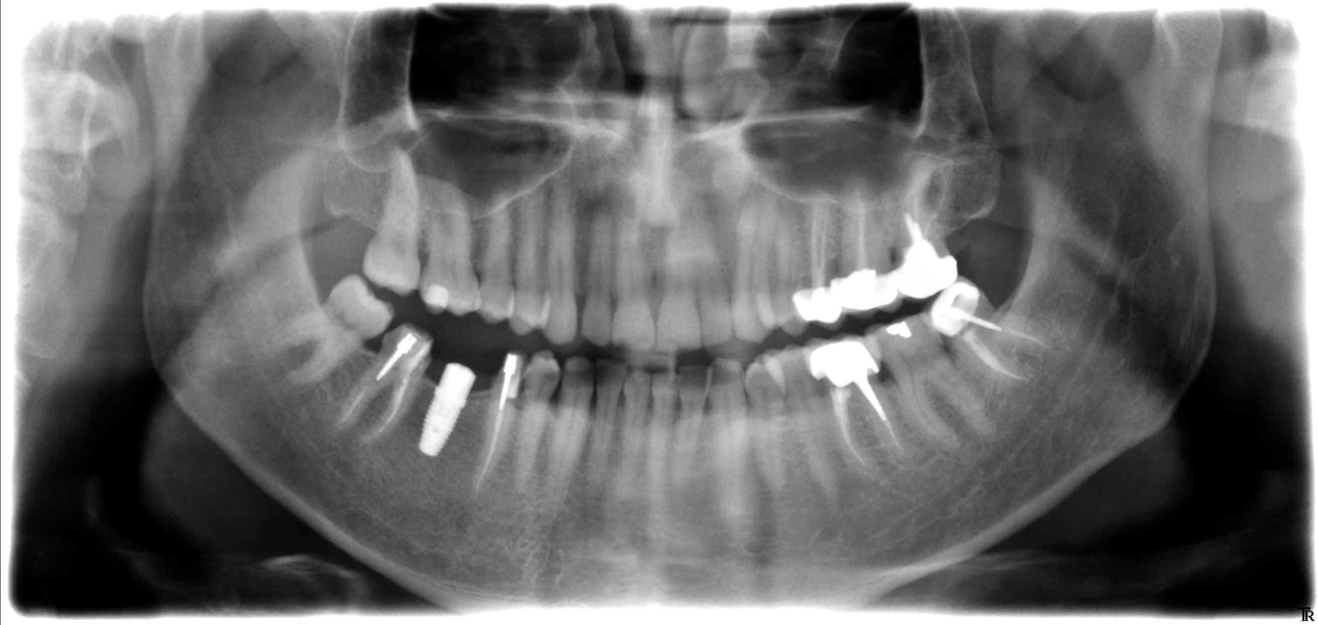 implant conique autre exemple