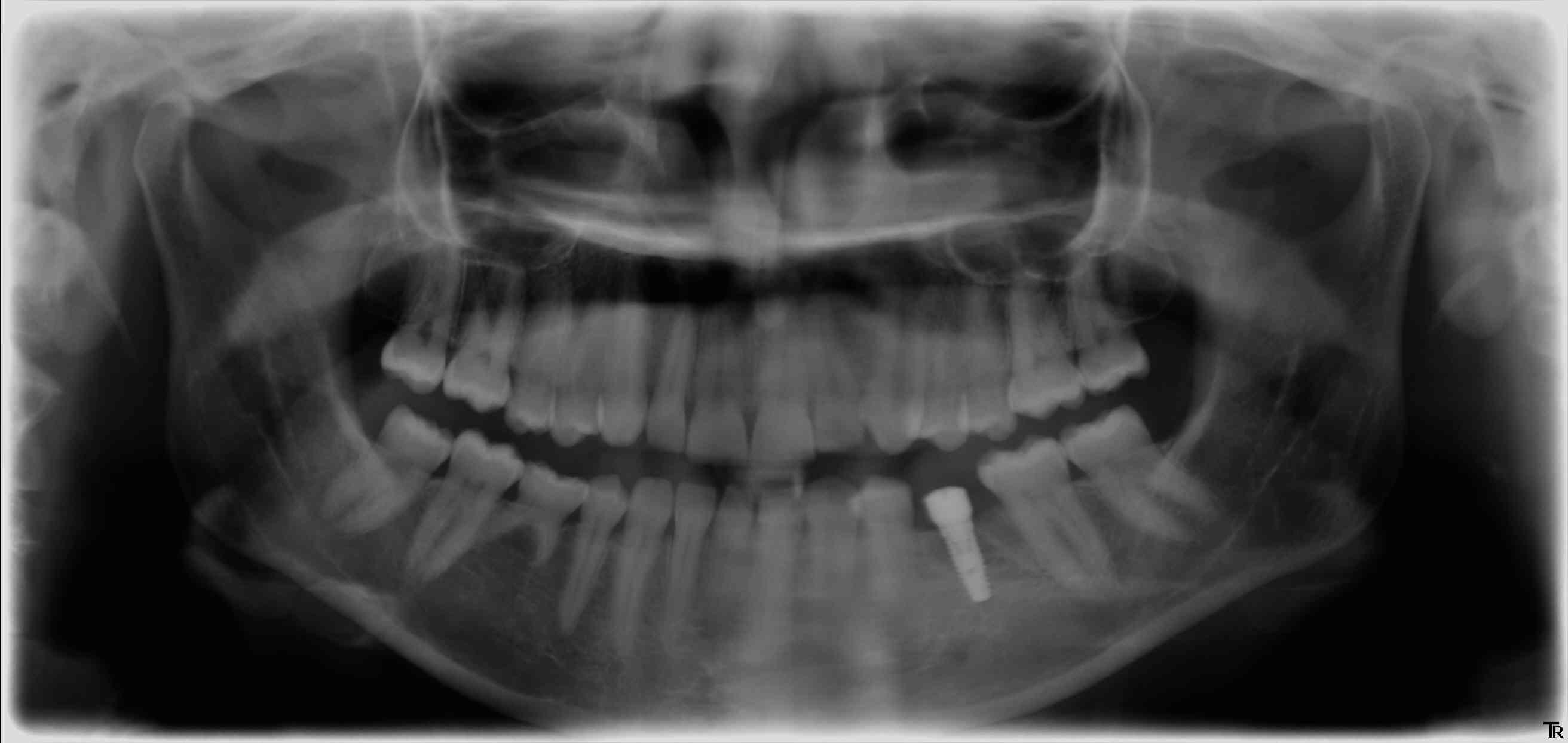 implant conique gauche