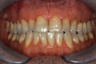détail des dents avant facettes