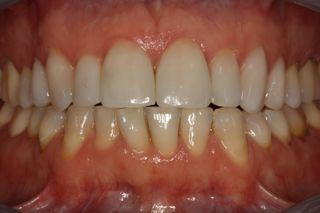dents avec les  facettes collées