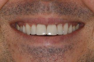 aspect naturel du sourire avec les facettes