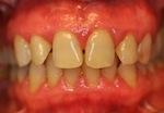 Parodontite avant traitement