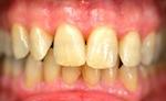 Parodontite après traitement