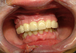 Cas traité au cabinet dentaire du Dr Guigue à Marseille