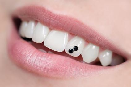 Bijoux Dentaire