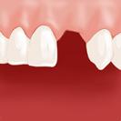 Dent manquante