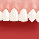 La dentition est parfaite !