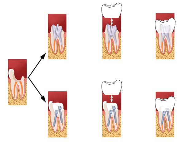 Couronne dentaire bordeaux