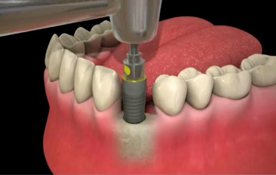 Mise_en_place_de_l_implant.jpg