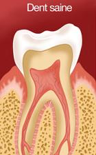 Dent saine