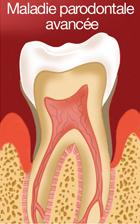 Maladie parodontale avancée