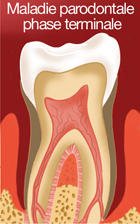 Maladie parodontale terminale