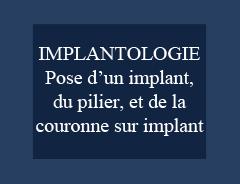 Implantologie: Pose d'un implant